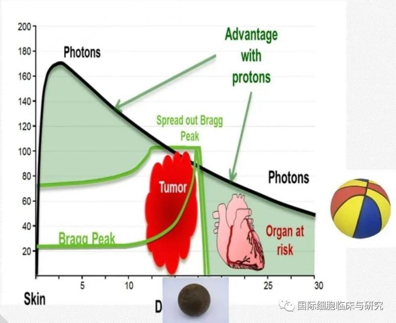 乳腺癌质子放疗和传统放疗对比