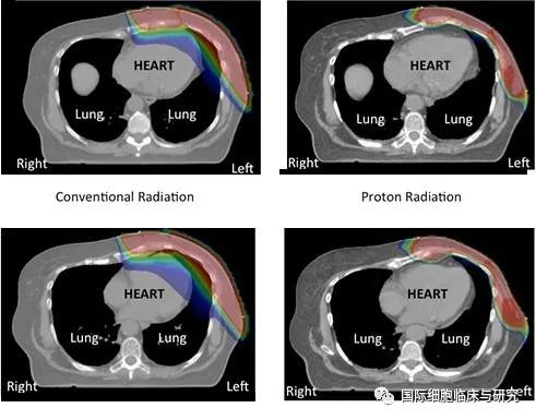 传统光子疗法与质子疗法的放射范围对比