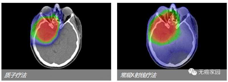 脑瘤质子治疗和常规放疗剂量对比