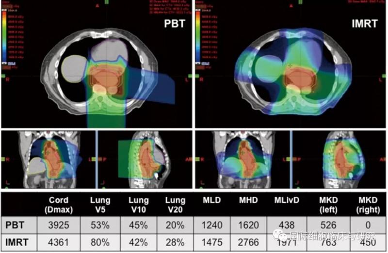 食管癌质子放疗和光子放疗照射范围对比