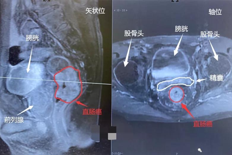 直肠癌矢状位图和轴位图