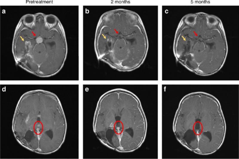 高级神经胶质瘤拉罗替尼治疗效果
