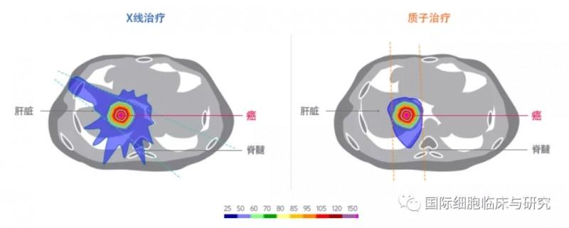 质子放疗和传统放疗放射剂量对比