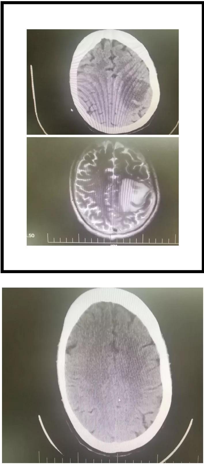 肺癌脑转移治疗前与治疗前后对比