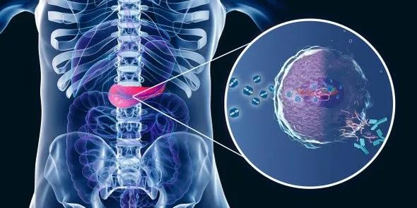 SM-88治疗胰腺癌