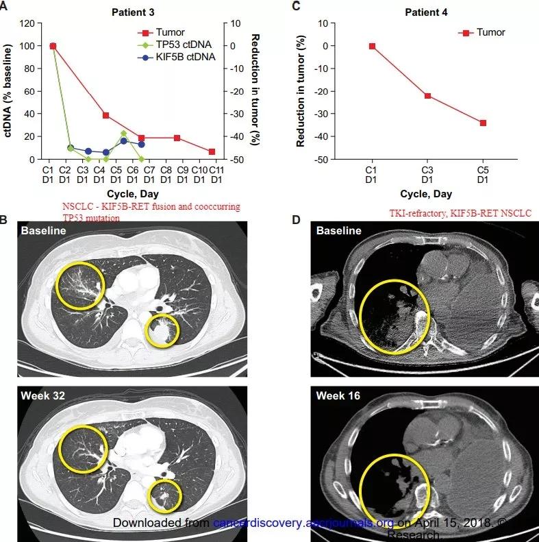 非小细胞肺癌普雷西替尼治疗效果