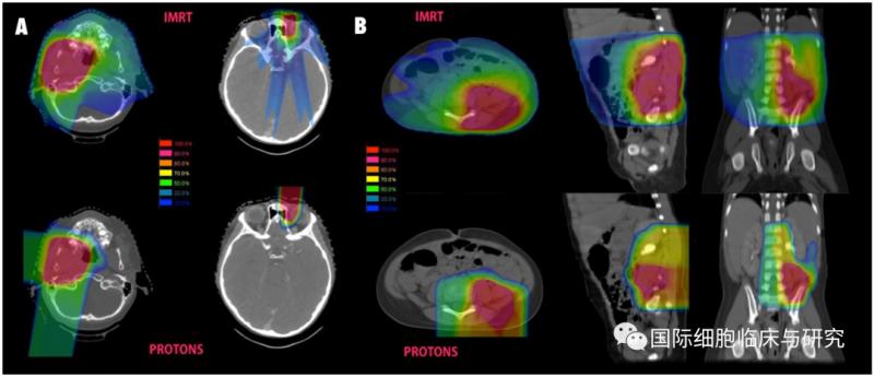 质子治疗和传统放疗放射剂量对比
