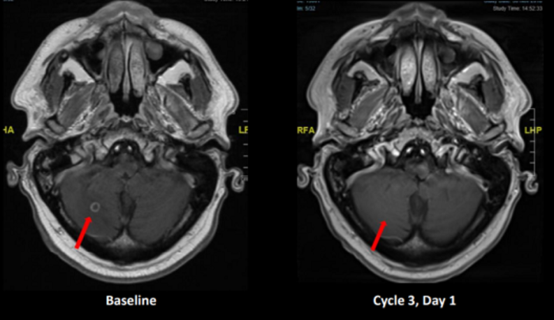 帕拉西替尼治疗RET基因融合的非小细胞肺癌脑转移脑部病灶完全缓解