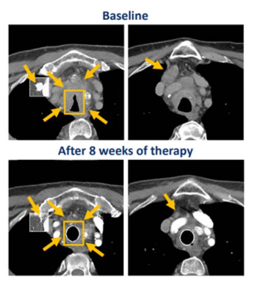 帕拉西替尼治疗RET基因融合甲状腺癌的效果