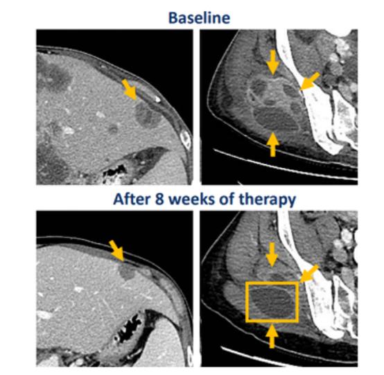 帕拉西替尼治疗RET基因融合胆管癌的效果