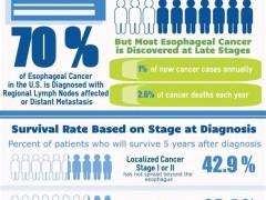 食管癌免疫治疗药物,食管癌PD1/PDL1治疗药物有哪些