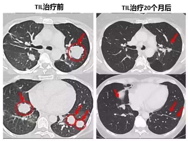 晚期胆管癌TIL疗法治疗前后对比