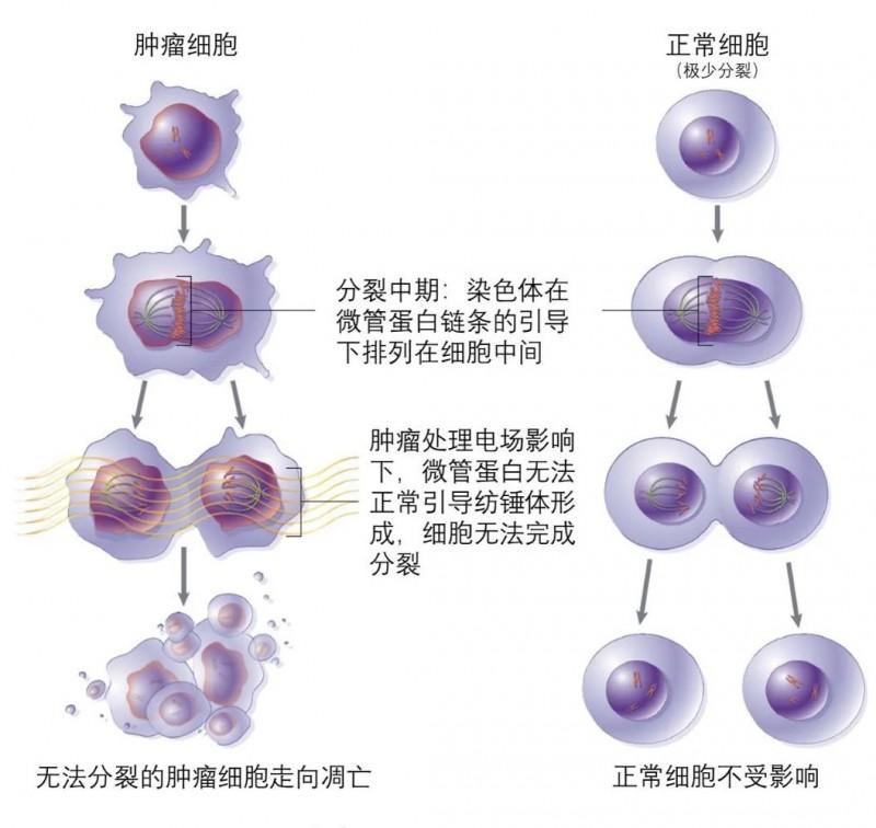 电场疗法是如何杀死癌细胞的