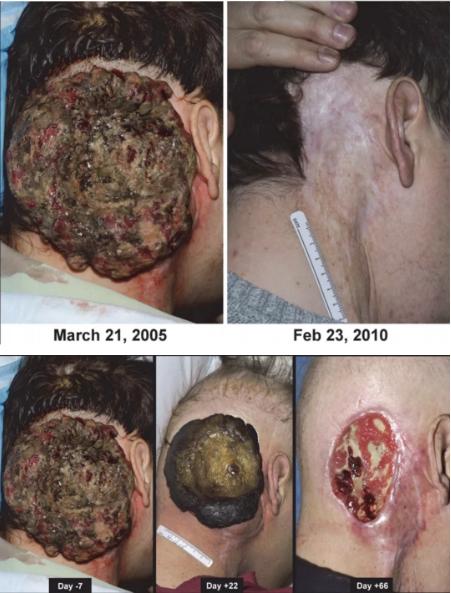 后颈部真菌性肿瘤