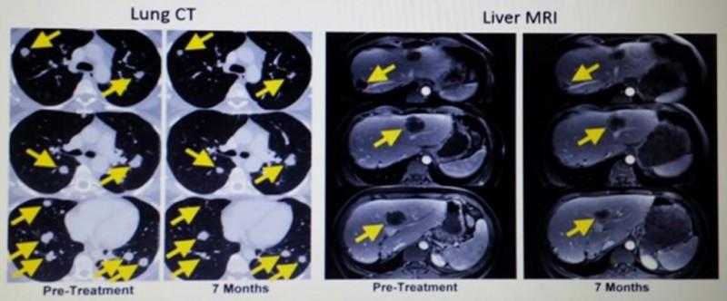 til疗法治疗胆管癌效果
