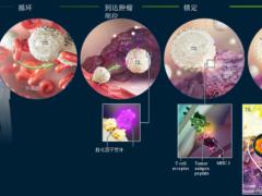 晚期肿瘤癌症新疗法,肿瘤浸润淋巴细胞TIL疗法临床试验进行中,有望上市