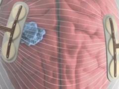 电场治疗胶质瘤,脑胶质瘤电场治疗,超高频电场疗法临床试验招募中
