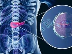 最新胰腺癌联合治疗,胰腺癌新药SM-88被FDA授予胰腺癌孤儿药地位