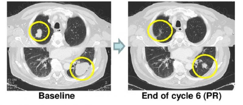 转移性直肠癌O药联合瑞戈非尼治疗效果