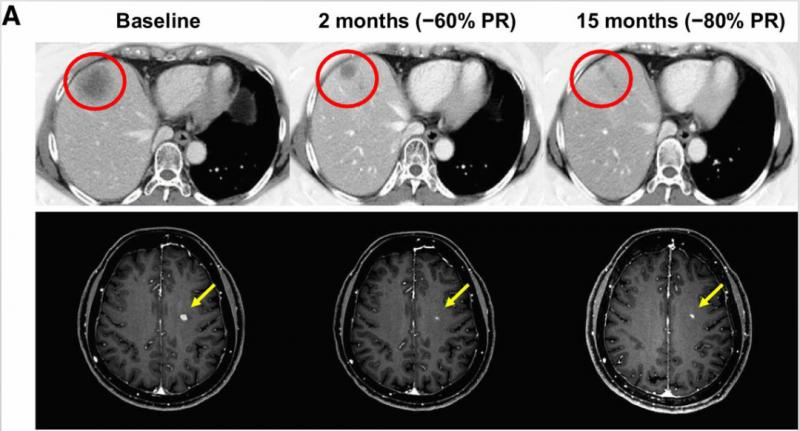 晚期非小细胞肺癌repotrectinib治疗效果