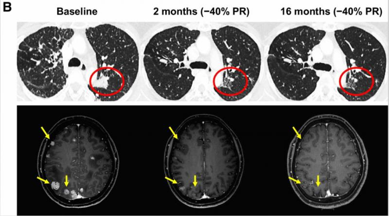 非小细胞肺癌克唑替尼耐药后洛普替尼治疗效果