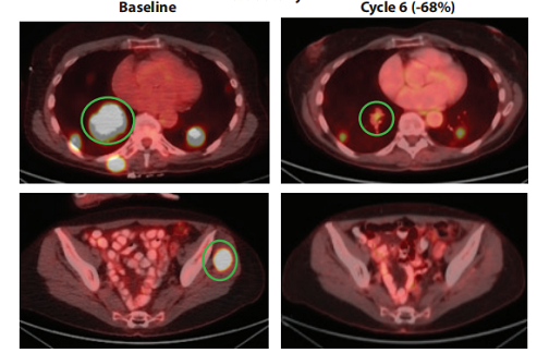 NTRK融合甲状腺癌Repotrectinib治疗效果