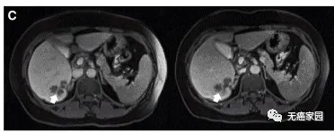 CAR-T治疗后P10的一个肝脏病变发生萎缩