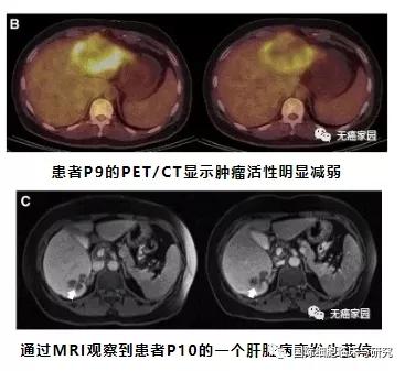 CAR-T细胞治疗CEA阳性的结直肠癌的有效性和安全性