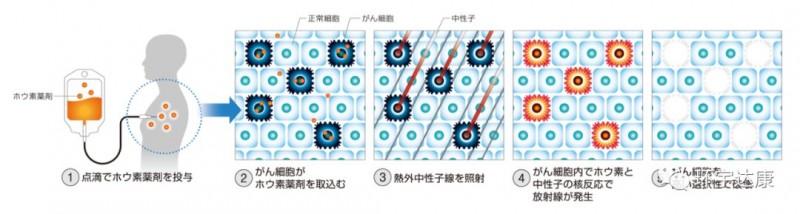 硼中子俘获疗法治疗过程