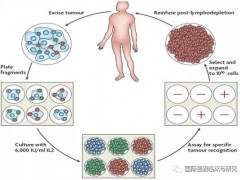 黑色素瘤TIL疗法,TIL细胞免疫疗法治疗给了患者第二次生命