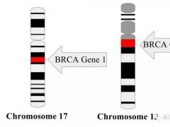 遗传性乳腺癌BRCA基因突变,BRCA突变靶向药,BRCA靶向药,PARP抑制剂有哪些