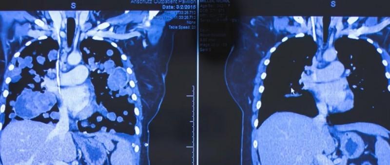 肺癌拉罗替尼治疗前后对比