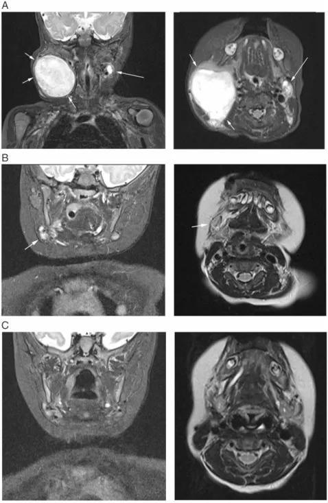 先天纤维肉瘤婴儿患者CT图
