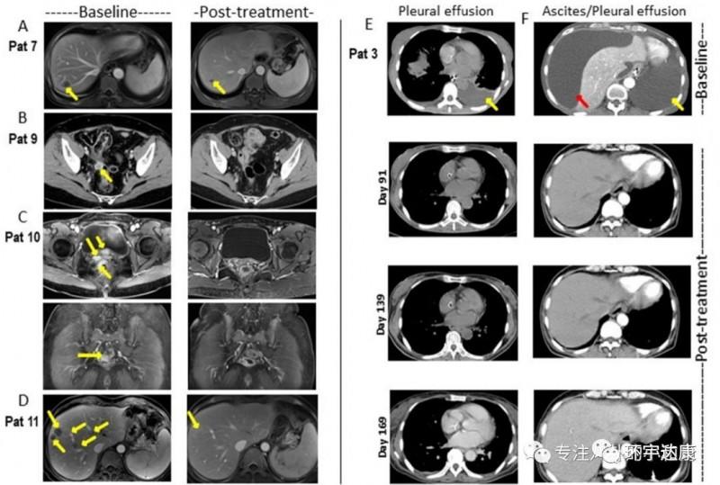 靶向Claudin18.2的实体瘤CAR-T疗法治疗胃癌效果