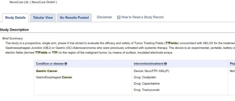 电场疗法的2期胃癌试验