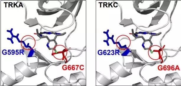 TRK基因突变