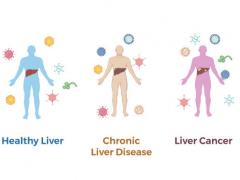 肝癌筛查,NIH科学家开发血液检测以帮助改善肝癌筛查