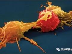 神经母细胞CAR-NKT细胞免疫疗法治疗让患儿获益