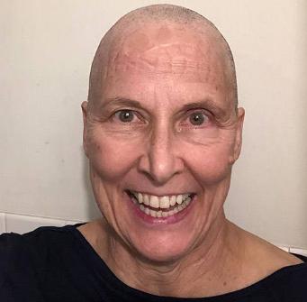 脑胶质瘤患者玛丽·简(Mary Jane)