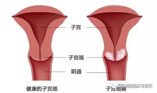 健康的子宫和子宫颈癌