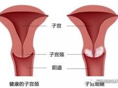 宫颈癌新药,抗体偶联药Tisotumab Vedotin疗效强劲