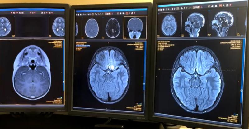 脑神经胶质瘤恩曲替尼治疗前后对比