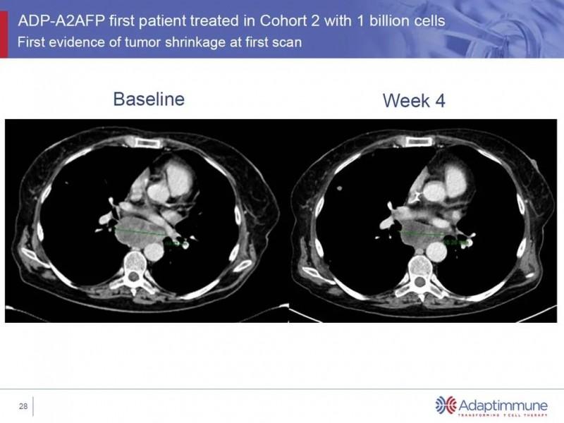 ADP-A2AFP治疗效果对比