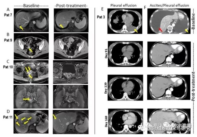 CAR-Claudin18.2 T 细胞治疗胃癌的临床前研究成果
