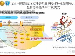 新一代ROS1/NTRK双靶点抑制剂药物AB106为耐药和脑转移找到治疗方案