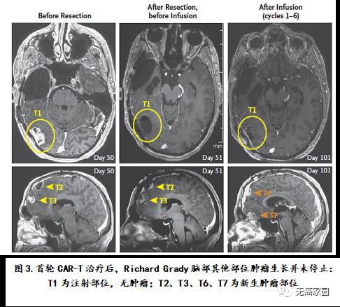 脑瘤首轮CAR-T治疗后对比