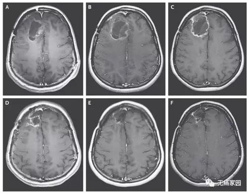 溶瘤病毒治疗脑瘤效果