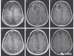 胶质母细胞瘤疫苗,AV-GBM-1树突状细胞疫苗为患者开启长存之路