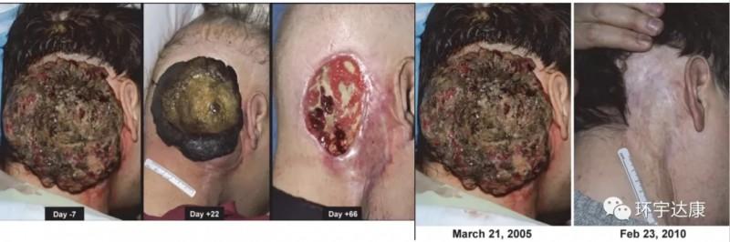 头颈癌TILS疗法治疗前后对比