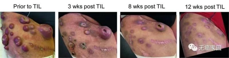 乳腺癌TILS疗法治疗前后对比